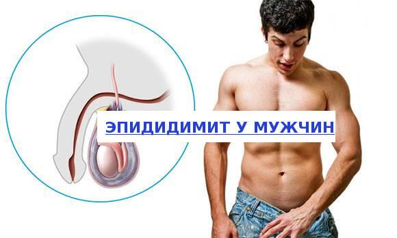 При эпидидимите секс